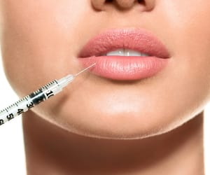 lip injections and dermal fillers image