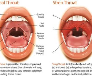healthcare, strep throat, and throat infection image