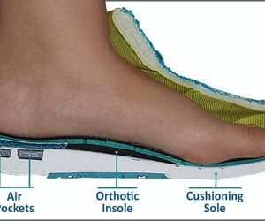 shoes, sneakers, and plantar fasciitis image