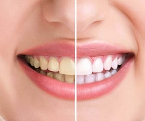 yellow teeth and yellow teeth treatment image