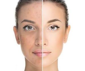 acne, akwa, and schoonheidsinstituut image