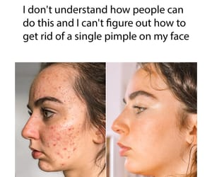 acne, funny, and hilarious image
