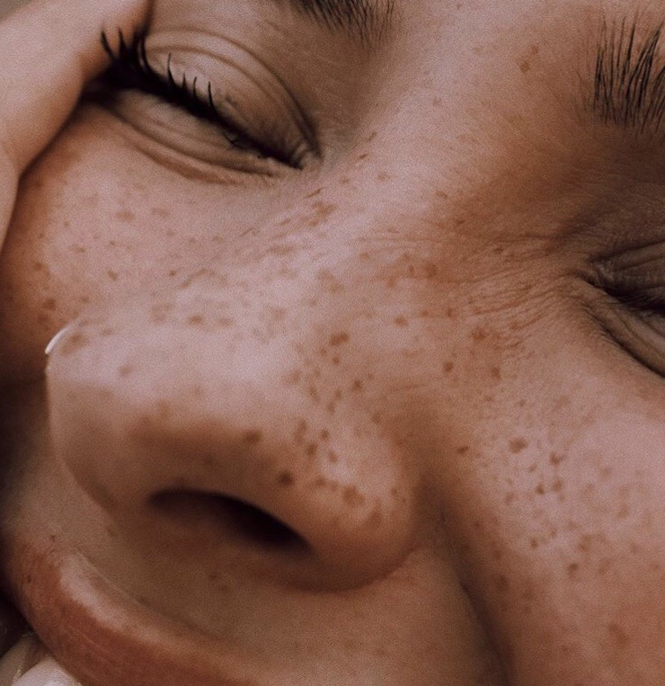 beautiful, face, and freckles image