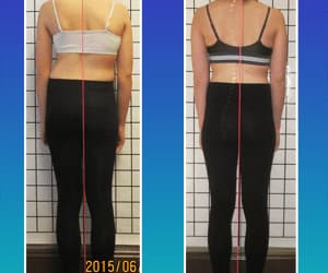before and after, scoliosis, and posture improvement image