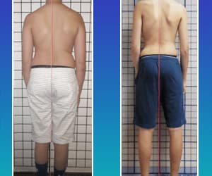scoliosis, transformation, and scoliosis treatment image