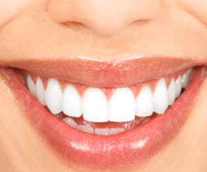 cosmetic dentistry, dentists in ne calgary, and cosmetic dentist image