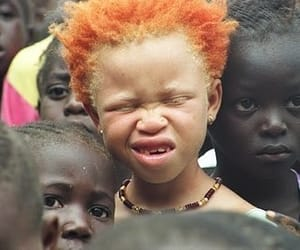 African, children, and albino image