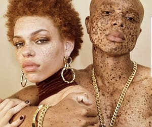 freckles and beauty image