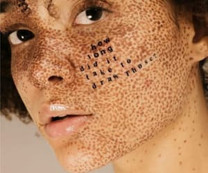 beauty, skin, and freckles image