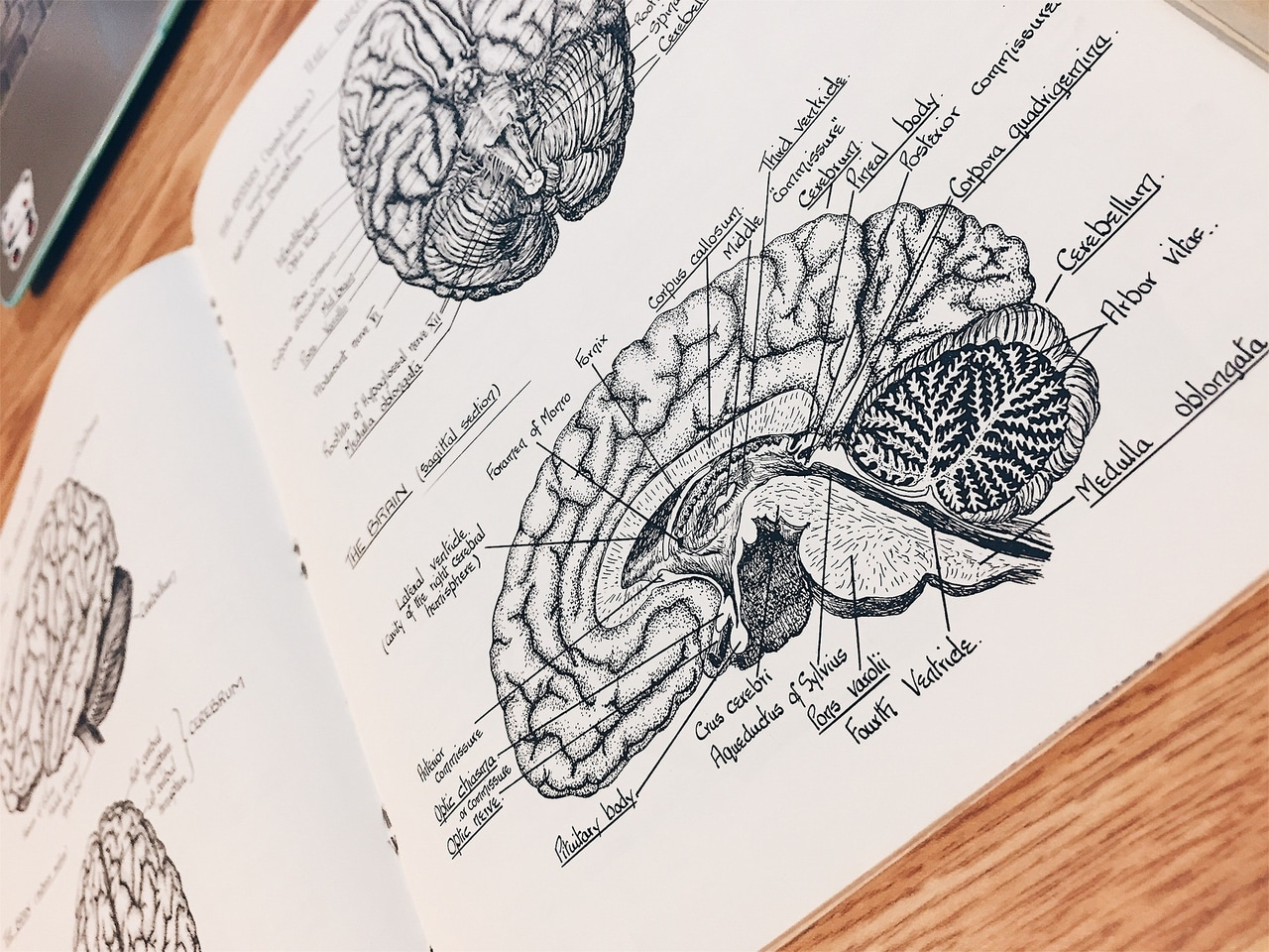 article, brain, and science image