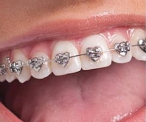 aesthetic, alternative, and braces image