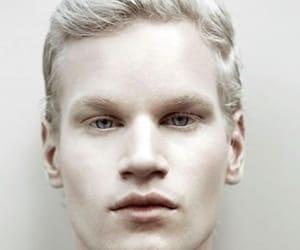 albino and braid image