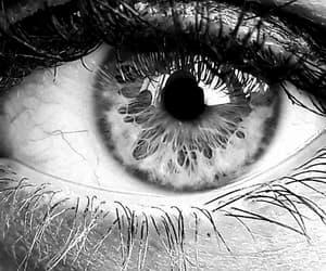 black and eye image