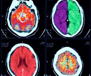brain, human anatomy, and theme image