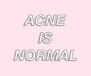 acne, pink, and body positivity image