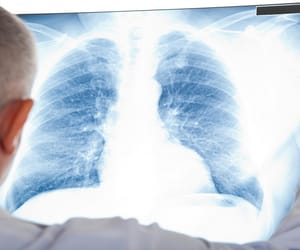 cancer news, mesothelioma diagnosis, and articles about cancer image