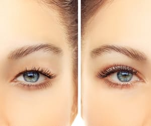 chicago face lift, neck lift chicago, and eyelid surgery chicago image
