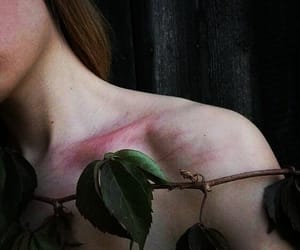 beauty, scar, and girl image