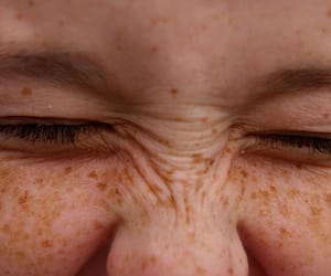 closed eyes, eyes, and freckles image