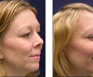 facelift surgery, liquid facelift chicago, and laser facelift image