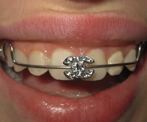 chanel and braces image