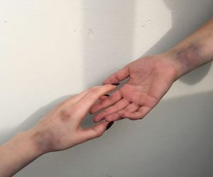 bruises and pale skin image
