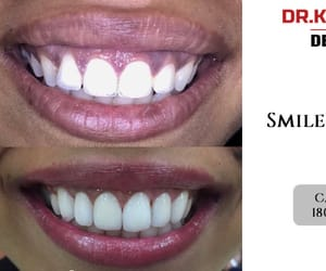 porcelain veneers and smile makeover image