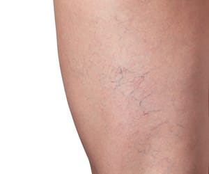 vein treatment image