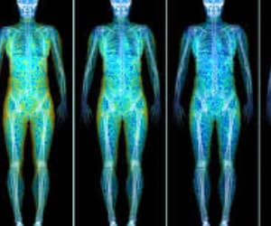dexa, dexa scan near me, and dexa scan cost image