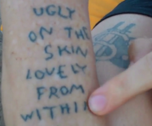 and, skin, and ugly image