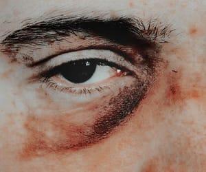 bruise, eye, and bruised image