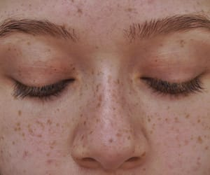 acne, tones, and advice image