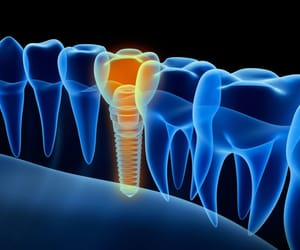 dental implants dubai image