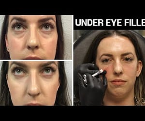 video, filler, and restylane image