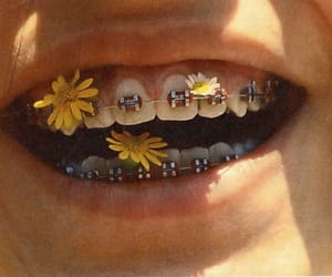 flowers, smile, and braces image
