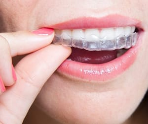 invisible braces image
