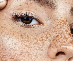 freckles and eyes image