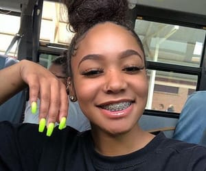 braceface and braces image