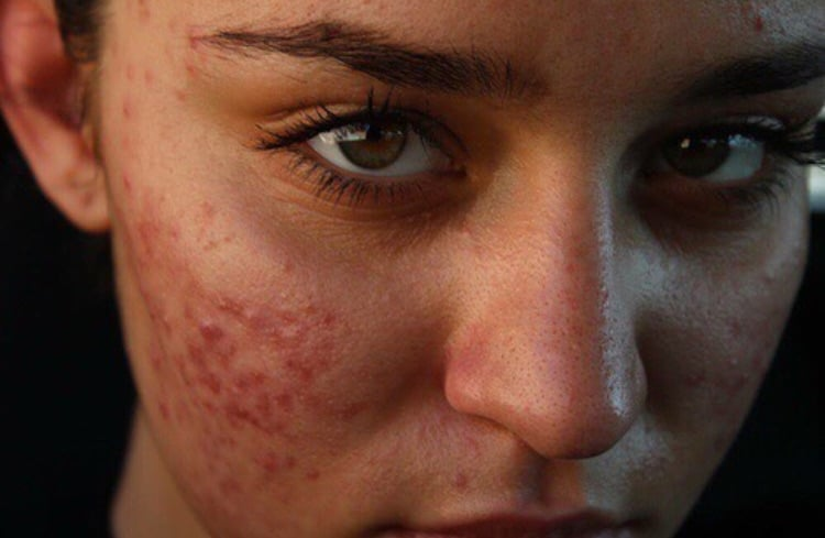 acne, piel, and tumblr image