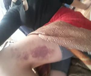 bruises, girl power, and purple image