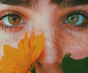 Mc, gold and green, and heterochromia iridum image