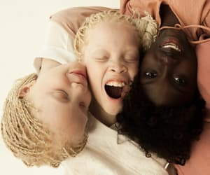 perfection, skin, and albinism image