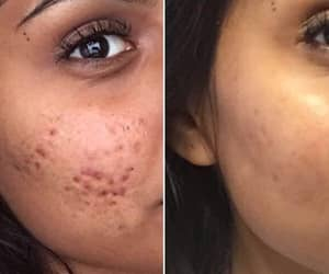 acne, article, and help image