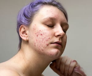 acne, body, and body positive image