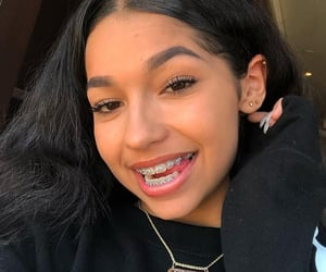 braces, bracket, and cute girl image