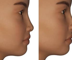 nose job, dermal fillers, and non-surgical rhinoplasty image