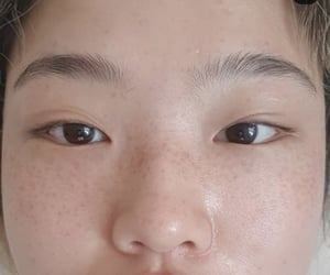 acne, article, and korean image