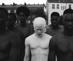 black, white, and albino image