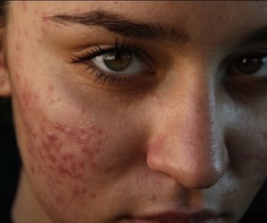 acne, skin, and article image