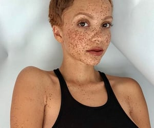 chic, freckle, and freckles image